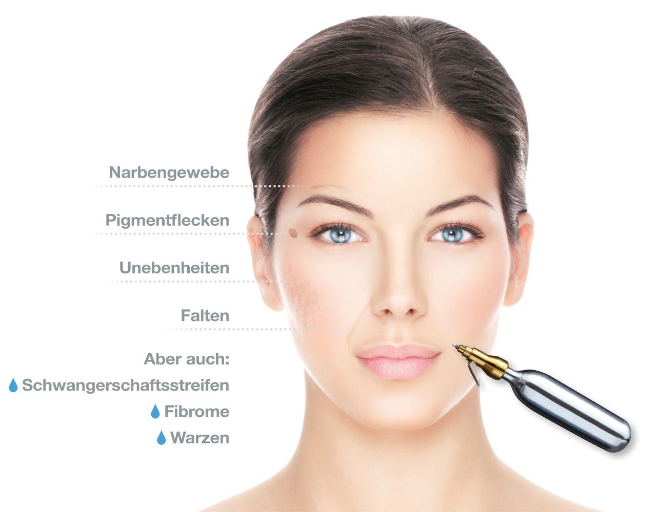 Hydrafacial Behandlung Kosmetik Bergisch Gladbach